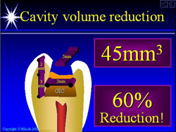 Cavity Volume Reduction